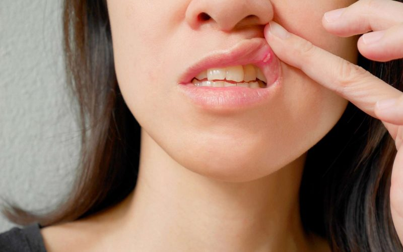 mouth sores treatment