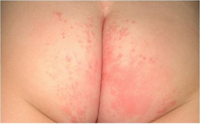 severe diaper rashes